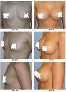 breast_augmentation-0009