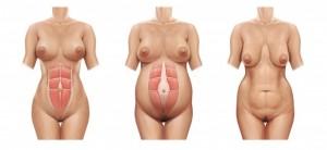 Abdome antes da gravidez, durante a gravidez e após a gravidez. Observe a separação da musculatura. Em cerca de 30% das mulheres esses músculos não voltam a sua posição inicial após a gravidez.Abdome antes da gravidez, durante a gravidez e após a gravidez. Observe  a separação da musculatura. Em cerca de 30% das mulheres esses músculos não voltam a sua posição inicial após a gravidez.