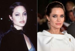 Angelina Jolie (Bichectomia)