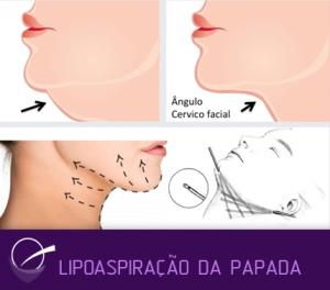 lipo_papada
