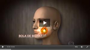 Confira a matéria completa do Fantástico sobre bichectomia
